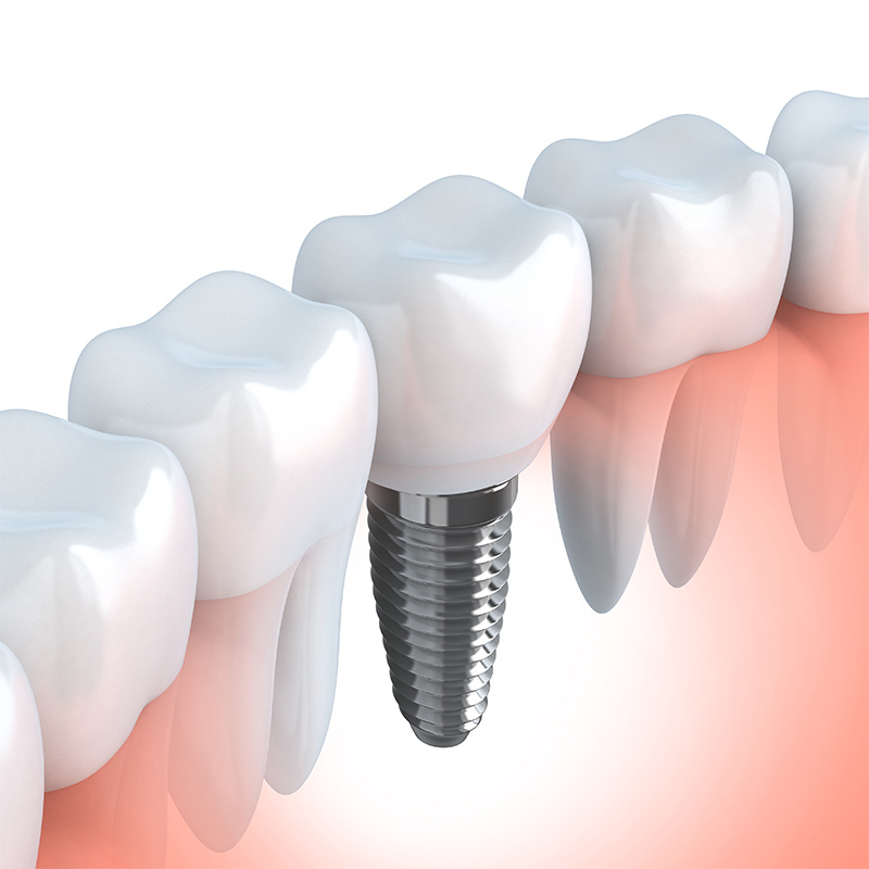 Odontica Dental Clinic | Dental Implants